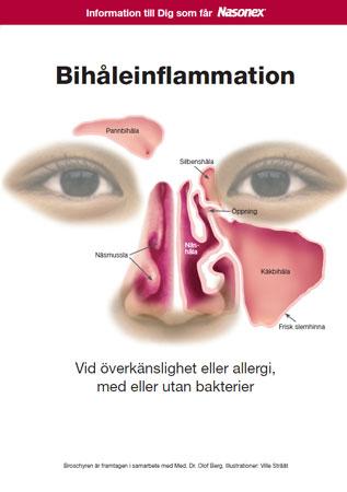 inflammation i käkbenets bihålor